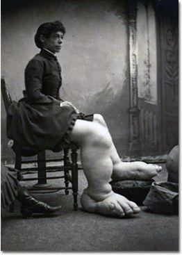 Fannie Mills - The Ohio Big Foot Girl