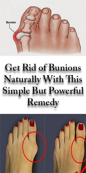 46ca17fcc Get Rid of Bunions Naturally With This Simple But Powerful Remedy  HEALTH -  ParadiseLife