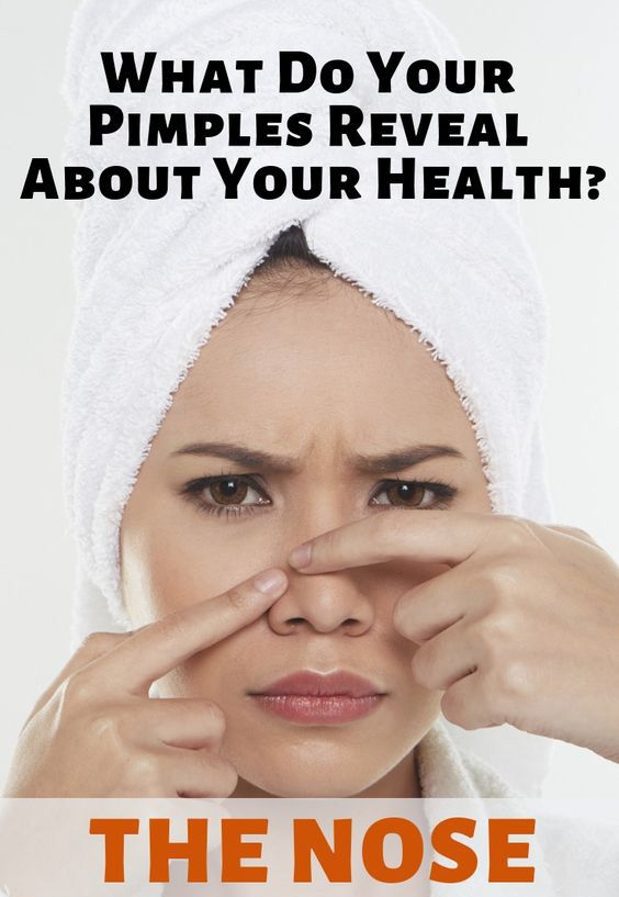 What Do Your Pimples Reveal About Your Health – Sk…
