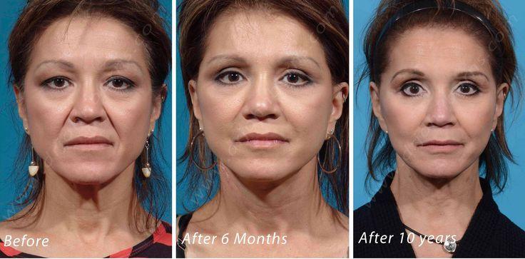 https://flic.kr/p/X6Lkbj | 10 Year Facelift | 10 Year Facelift by Dr. John L. Burns, Jr., MD Board Certified Plastic Surgeon President, Dallas Plastic Surgery Institute