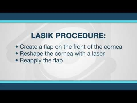 What is Lasik Surgery? LASIK eye surgery is one type of laser vision correction that is accomplished by ablation or subtraction of a microscopic amount of corneal tissue.