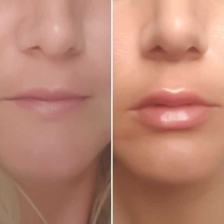 before and after lips injections 0.8 ml