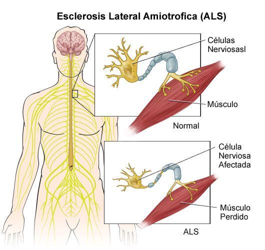 La esclerosis lateral amiotrófica (ELA) es una enfermedad neurológica progresiva, que ataca a las neuronas encargadas de controlar los músculos voluntarios. Los pacientes con dicha enfermedad tienen   serios problemas de movilidad. Referencia:  Fernández Lerones, M. J., & De la Fuente Rodríguez, A. Esclerosis lateral amiotrófica.