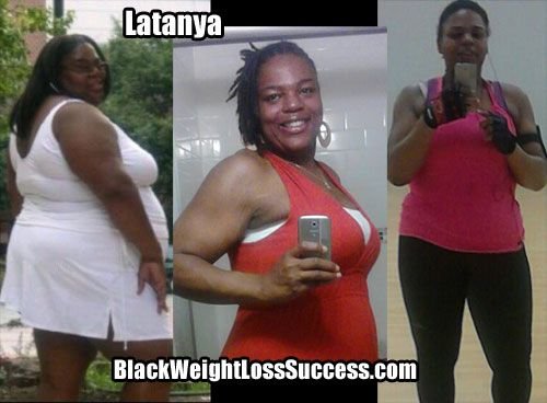 LaTanya lost 140 pounds with weight loss surgery | Black Weight Loss Success