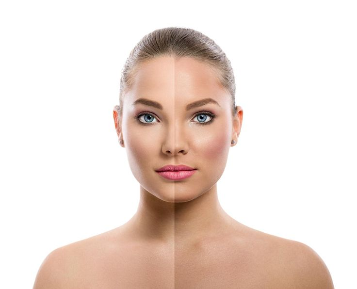 t is dream of every woman to get fair skin. There are many products available in market which can give you fair skin naturally but sometimes chemical bleach present in these products may be harmful for your skin. You can get fair skin naturally at home. You can apply face pack for fairness made at home. Face whitening tips or  method to prepare fairness face packs are as follows :-