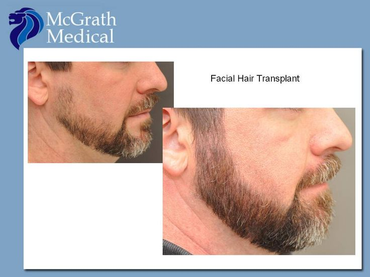Facial hair transplant - beard before and after