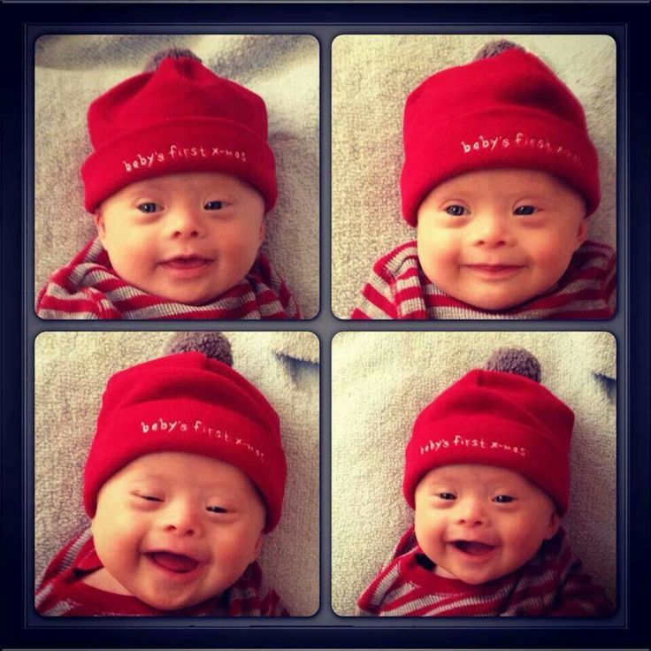 down syndrome babies are soo cute!  I love,love,love this baby!!!!!!!!!!!!!!!!!!!!!!!!!