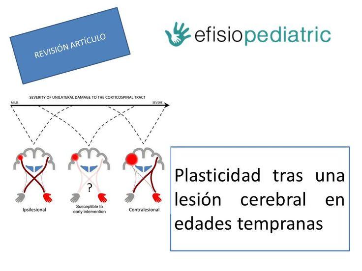En esta revisión de un artículo, hemos aprendido más sobre la plasticidad tras una lesión cerebralen edades tempranas.