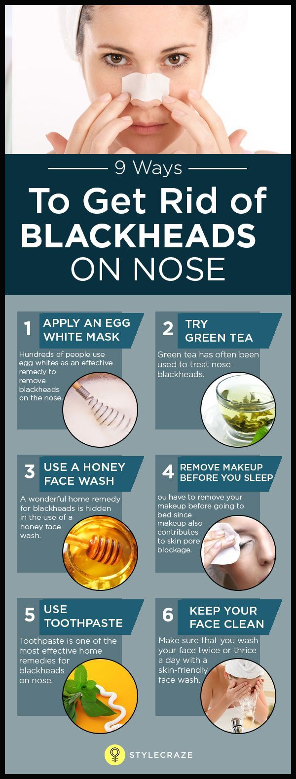Nose Blackheads can make you quite miserable. Common to all skin types, they tend to spoil your skin quality, giving you an unattractive appearance. Although the process of removing blackheads is easy, one wrong move can leave permanent marks on your skin.