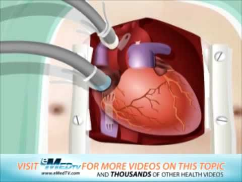 basic CABG animation with commentary