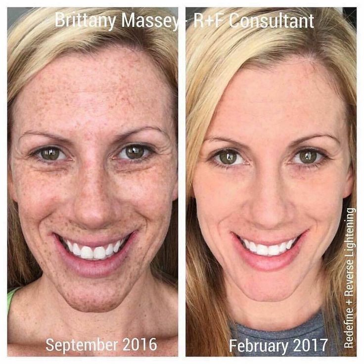"""WHOA! Looking to clean the slate from years of sun damage or melasma from pregnancy? Here's what consultant Brittany had to say about her stunning results with the Rodan + Fields Reverse and Redefine Regimens: """"This is me. Before. After. Makeup-Free in both. We say it's life-changing skincare. It really is. Don't just read about it. Take immediate action!"""" #LifeChangingSkincare"""