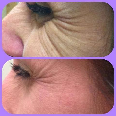 Improve your crows feet, wrinkles For younger looking skin check out Skincerity at www.mynucerity.biz/twinkle