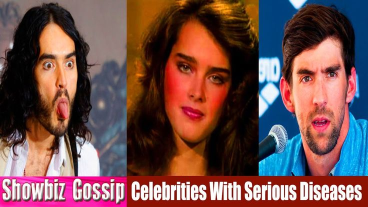 Top 07 Celebrities With Serious Diseases