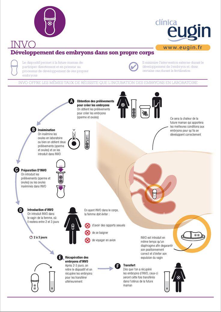 INVO: Développement des embryons dans son propre corps  Le dispositif permet à la future maman de participer directement et en primeur au processus de développement de ses propres embryons http://www.eugin.fr/invo