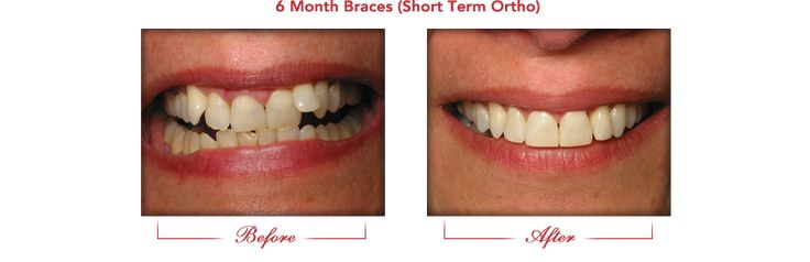 Before and After Gallery Affinity Dental Traditional