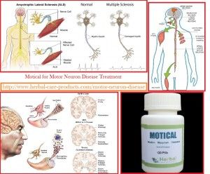 What is Motor Neuron Disease?