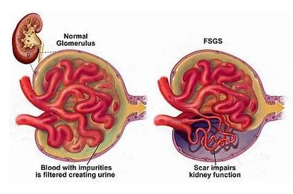 What Causes Focal Segmental Glomerulosclerosis(FSGS)
