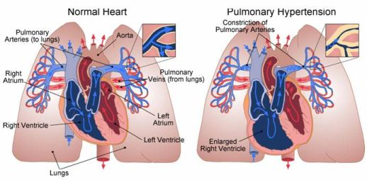 This is how it looks inside a PH affected heart and set of lungs... Pulmonary Hypertension