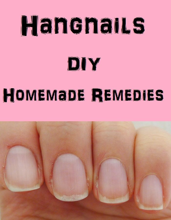 * Hangnails are pretty common appearances. Hangnails are triangular shaped bits of skin that tear off. Dry skin and soaking hands in water for long hours c