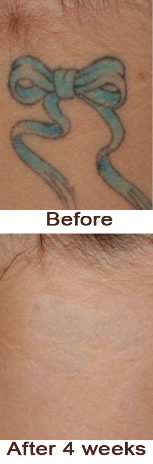 Tattoo after 4 weeks lemon this ingredient can take it for Home tattoo removal cream