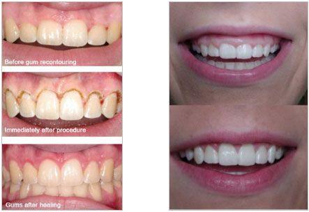 Gum Recontouring Amp Gum Lifts Laser Dentistry Dentistry