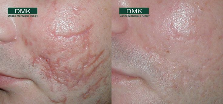 DMK Scarring - Before & After