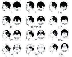 Cheap Hair Growth Products