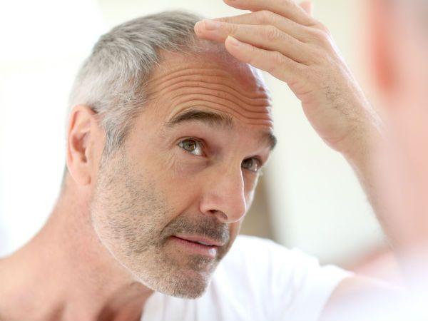 A helyes táplálkozás nemcsak a #hajhullást képes megállítani, hanem sok esetben az azt okozó betegséget is megszüntetheti
