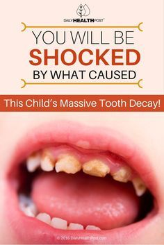 This has led to a rise in oral health problems in children. Whereas cavities were a major concern 10 years ago, children now are facing complete tooth extraction due to decay.