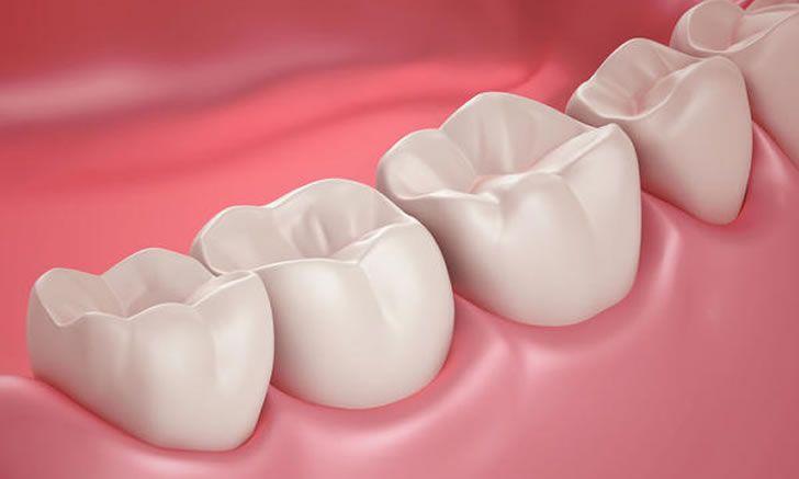 Diş tartarı, diş taşı ve bakteri plağı doğal yöntemlerle nasıl temizlenir? Kabartma tozu, limon, sirke ile diş temizliği.