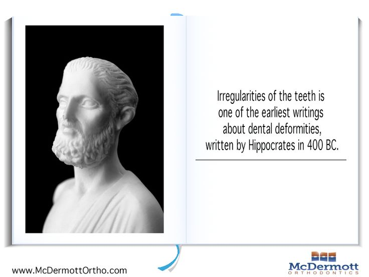Orthodontic Fact #9 Irregularities of the teeth is one of the earliest writings about dental deformities, written by Hippocrates in 400 BC - McDermott Orthodontist, 708 Elm Ave. E., Delano, MN 55328, TEL: 763-972-4444 #orthodontist #invisalign #braces