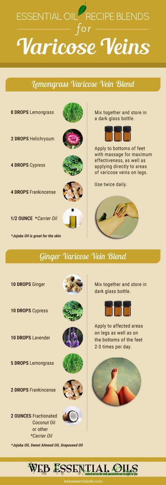 Best Way To Treat Varicose Veins Naturally