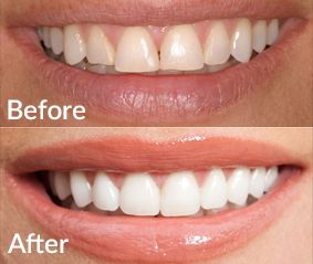 Want a perfect smile? You need a Porcelain veneers, Crowns and bridges to close the gap and fix mildly crooked teeth. We offer it at affordable cost in Doncaster & Box Hill.