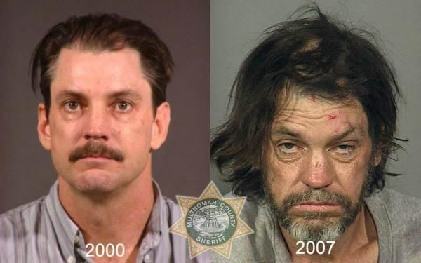 Cocaine Addiction and Drug Rehab Blog: Meth addiction,the symptoms,effects,Rehab treatmen...
