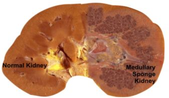 Medullary Sponge Kidney Rare Disease That Needs More Attention Brought To It