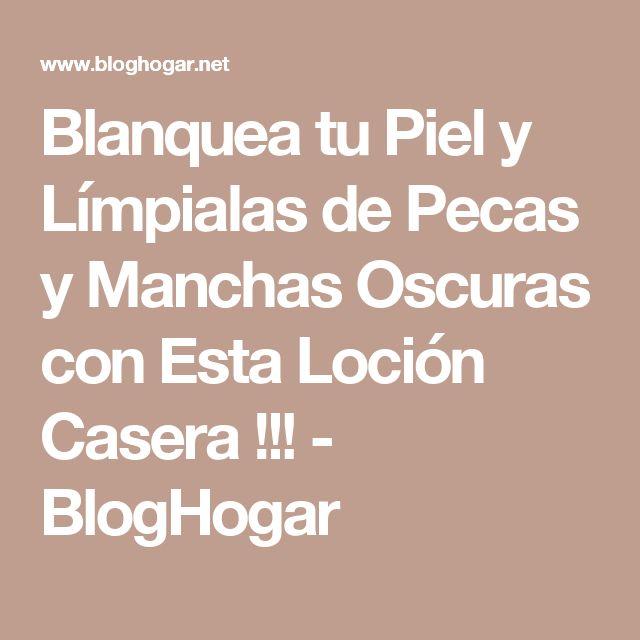 Blanquea tu Piel y Límpialas de Pecas y Manchas Oscuras con Esta Loción Casera !!! - BlogHogar