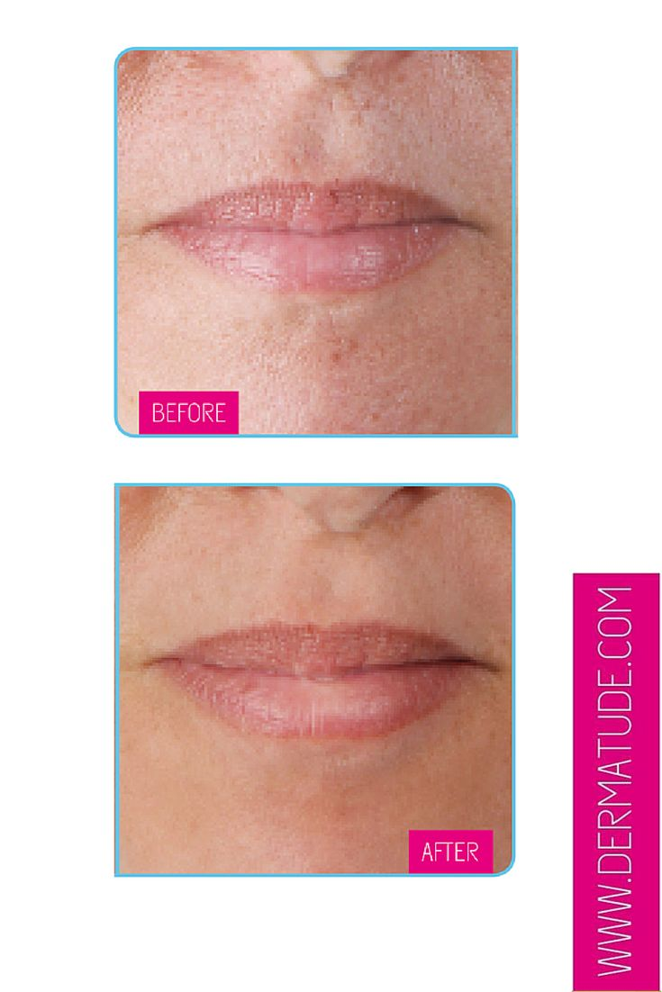 #Dermatude Before and After Lips