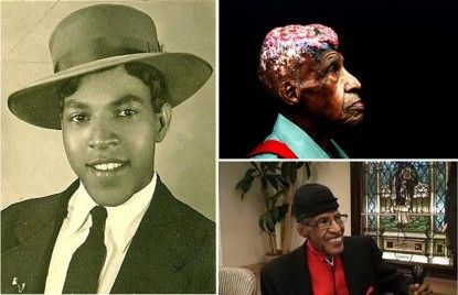 Vertus Wellborn Hardiman (1922 – 2007), who was a victim of a US government human radiation experiment [the parents didn't know was that the children were actually part of a human experiment on extreme radiation] at the age of 5 that left him with a painful skull deformity that forced him to cover his head for 80 years.
