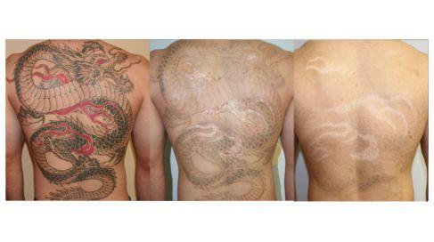10 questions sur le détatouage laser #MonSiteBeauté #tatouage