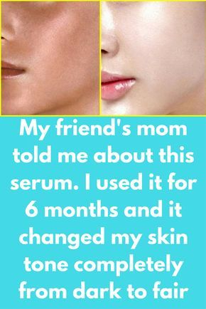 My friend's mom told me about this serum. I used it for 6 months and it changed my skin tone completely from dark to fair Skin Whitening GLOW SERUM at Home   Best Magical Serum For Face   Get Fair, Glowing Spotless Skin Naturally At Home – 100% guaranteed result. Ingredients required: Rose water Vitamin E oil Aloe vera gel Olive oil Vitamin C tablet Preparation: In a clean bowl take 2 spoon rose water Add crushed powder of 2 …