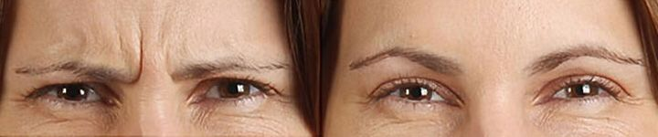Crows feet wrinkles and forehead lines, can be a real pain as we age.  Botox can help to reduce the appearance.  Find out if this is a suitable treatment for you by booking a consultation with Dr Tailor.