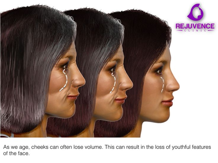 Clever enhancement of the cheek regions can result in replenishment of volume depleted areas as well as providing a lifting effect.