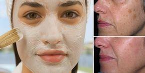 Maschera di bicarbonato e aceto di mele contro macchie e acne Macchie e acne un problema molto diffuso che è difficile combattere.