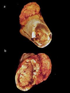 Metatarsal (a) and (b) surface rendered models show medullary spongy bone infill and clear focalized cortical destruction near the periosteal margin; also evident on external cortical margin directly abutting malignant neoplasm is the characteristic hair on end bone reaction in (b). Credit: Edward Odes (Wits)