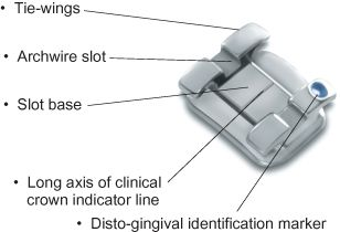 Image result for fixed orthodontic appliances brackets