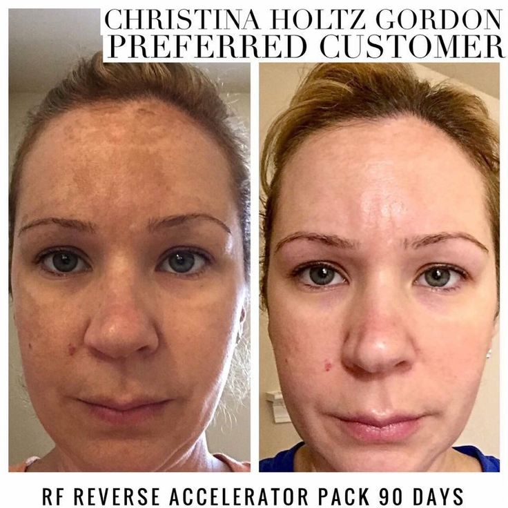 Real people. Real RESULTS. Meet Christina Holtz Gordon. When she heard Rodan + Fields could help her with her dark spots, she was all in! She experienced melasma after the hormones from her pregnancies, but she was ready to do something to regain her beautiful naturally-glowing complexion, and I would say she achieved her goal!!! Check out her beautiful, radiant transformation! #RodanandFields #Reverse #cleantheslate