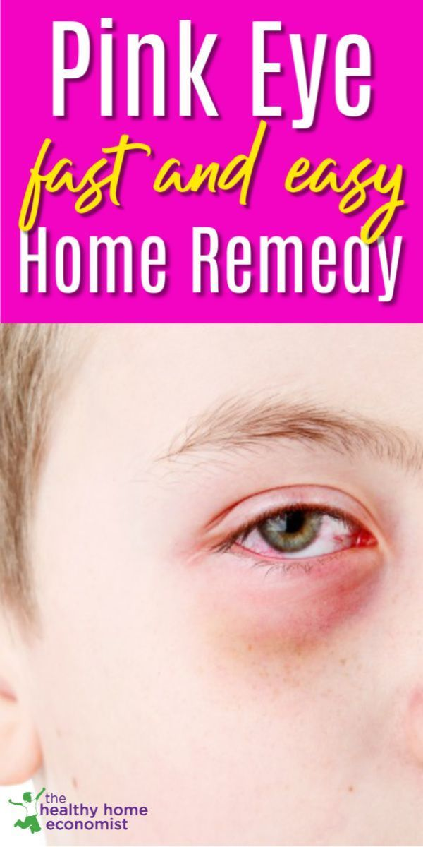 Pinkeye Fast Easy And Best Home Remedy Healthy Home Economist
