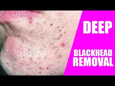 blackheads removal at home white head remedy beauty tips in hindi, home ...