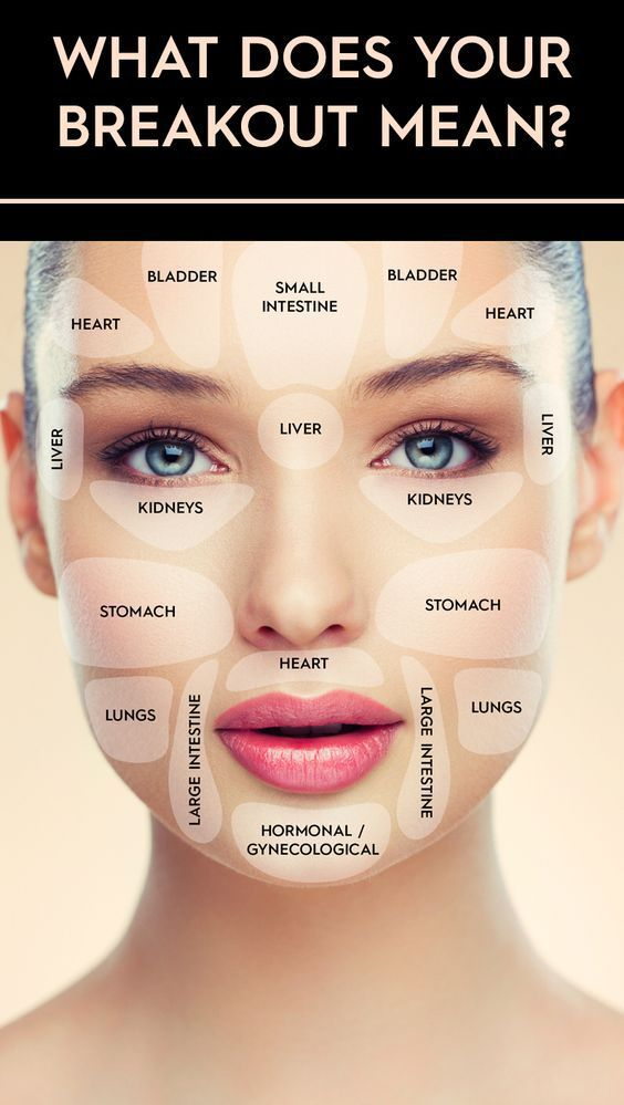 Feeling beautiful in your own skin. Acne prevention ...