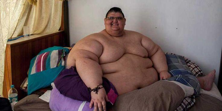 Mexico's Heaviest Man Sheds 170 Kilos